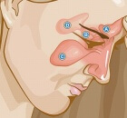 remedies for sinus infection and sinusitis